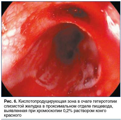 Рис. 6. Кислотопродуцирующая зона в очаге гетеротопии слизистой желудка в проксимальном отделе пищевода, выявленная при хромоскопии 0,2% раствором конго красного