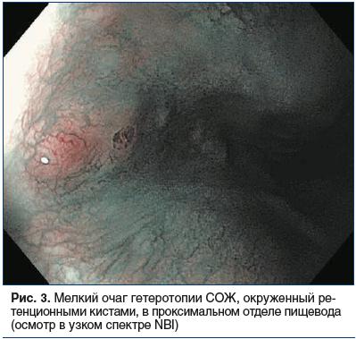 Рис. 3. Мелкий очаг гетеротопии СОЖ, окруженный ретенционными кистами, в проксимальном отделе пищевода (осмотр в узком спектре NBI)