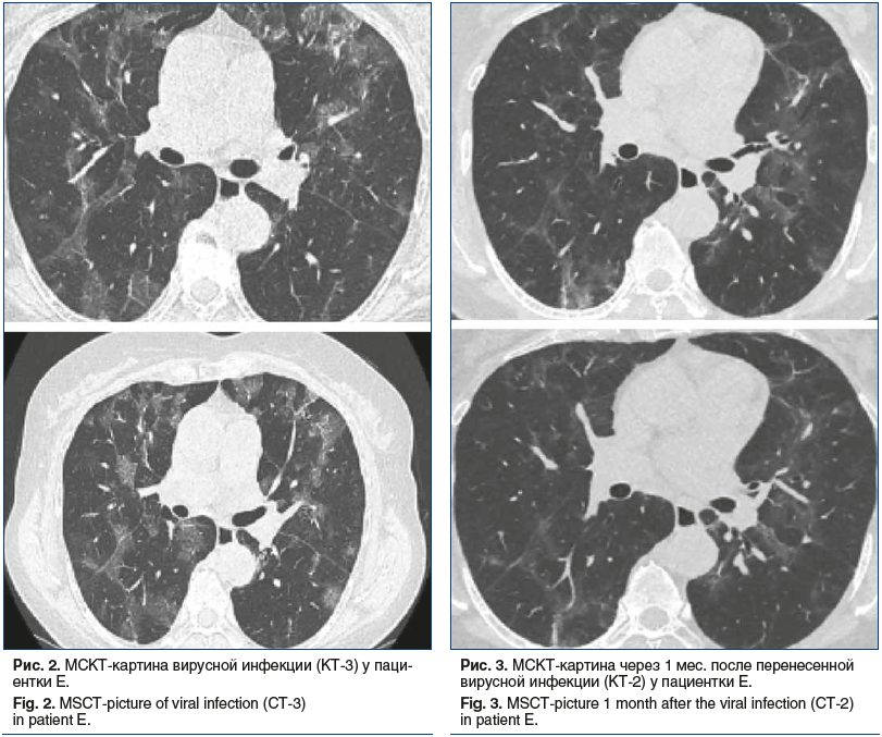 Рис. 2. МСКТ-картина вирусной инфекции (КТ-3) у паци- ентки Е. Fig. 2. MSCT-picture of viral infection (CT-3) in patient E.