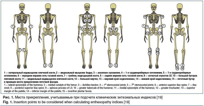 Рис. 1. Места прикрепления, учитываемые при подсчете клинических энтезиальных индексов [19] Fig. 1. Insertion points to be considered when calculating enthesopathy indices [19]