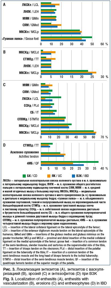 Рис. 3. Локализация энтезитов (A), энтезитов с васкуля- ризацией (B), эрозий (С) и энтезофитов (D) при ВЗК Fig. 3. Localization of enthesitis (A), enthesitis with vascularization (B), erosions (C) and enthesophytes (D) in IBD