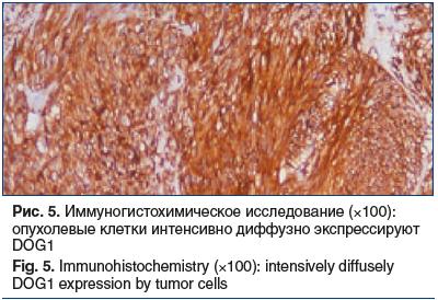 Рис. 5. Иммуногистохимическое исследование (×100): опухолевые клетки интенсивно диффузно экспрессируют DOG1 Fig. 5. Immunohistochemistry (×100): intensively diffusely DOG1 expression by tumor cells