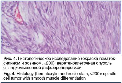 Рис. 4. Гистологическое исследование (окраска гематок- силином и эозином, ×200): веретеноклеточная опухоль с гладкомышечной дифференцировкой Fig. 4. Histology (hematoxylin and eosin stain, ×200): spindle cell tumor with smooth muscle differentiation