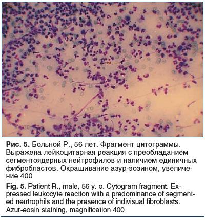 Рис. 5. Больной Р., 56 лет. Фрагмент цитограммы. Выражена лейкоцитарная реакция с преобладанием сегментоядерных нейтрофилов и наличием единичных фибробластов. Окрашивание азур-эозином, увеличе- ние 400 Fig. 5. Patient R., male, 56 y. o. Cytogram fragment.
