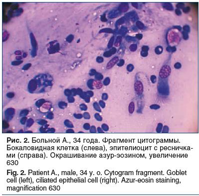Рис. 2. Больной А., 34 года. Фрагмент цитограммы. Бокаловидная клетка (слева), эпителиоцит с ресничка- ми (справа). Окрашивание азур-эозином, увеличение 630 Fig. 2. Patient A., male, 34 y. o. Cytogram fragment. Goblet cell (left), ciliated epithelial cell