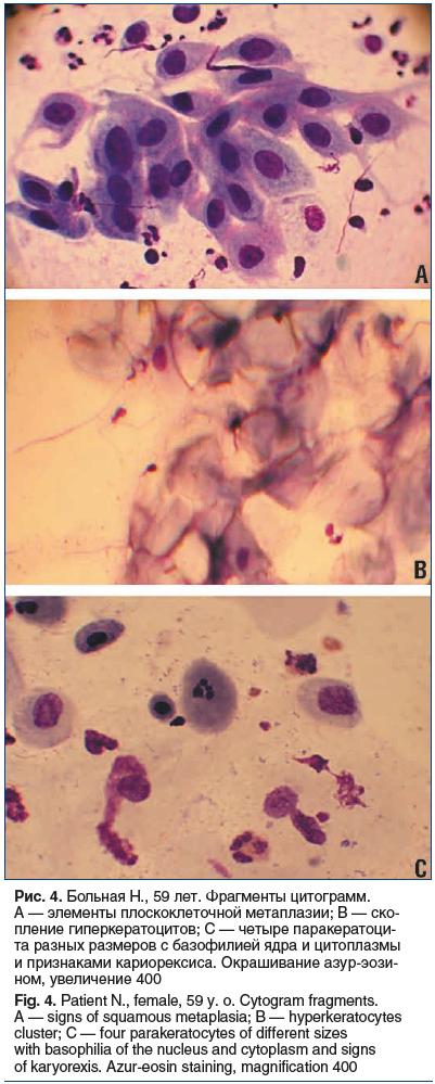 Рис. 4. Больная Н., 59 лет. Фрагменты цитограмм. А — элементы плоскоклеточной метаплазии; B — ско- пление гиперкератоцитов; C — четыре паракератоци- та разных размеров с базофилией ядра и цитоплазмы и признаками кариорексиса. Окрашивание азур-эози- ном, у