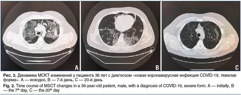 Рис. 2. Динамика МСКТ-изменений у пациента 36 лет с диагнозом «новая коронавирусная инфекция COVID-19, тяжелая форма». А — исходно, В — 7-й день, С — 20-й день Fig. 2. Time course of MSCT changes in a 36-year-old patient, male, with a diagnosis of COVID-1