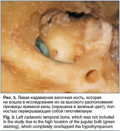 3. Левая кадаверная височная кость, которая не вошла в исследование из-за высокого расположения луковицы яремной вены (окрашена в зеленый цвет), пол- ностью перекрывающей собой гипотимпанум Fig. 3. Left cadaveric temporal bone, which was not included in t