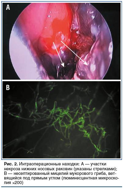Рис. 2. Интраоперационные находки: А — участки некроза нижних носовых раковин (указаны стрелками); В — несептированный мицелий мукорового гриба, ветвящийся под прямым углом (люминесцентная микроскопия ×200)