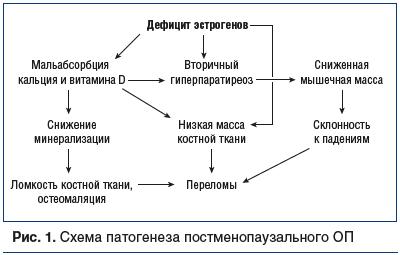 Рис. 1. Схема патогенеза постменопаузального ОП