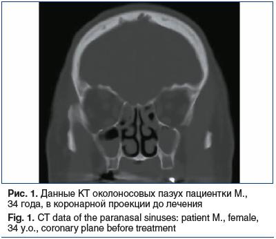 Рис. 1. Данные КТ околоносовых пазух пациентки М., 34 года, в коронарной проекции до лечения Fig. 1. CT data of the paranasal sinuses: patient M., female, 34 y.o., coronary plane before treatment