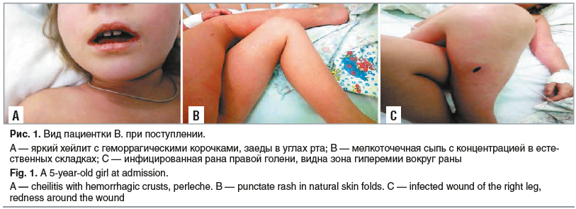 Рис. 1. Вид пациентки В. при поступлении.