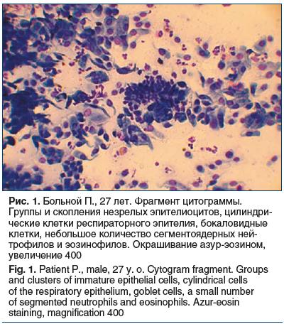 Рис. 1. Больной П., 27 лет. Фрагмент цитограммы. Группы и скопления незрелых эпителиоцитов, цилиндри- ческие клетки респираторного эпителия, бокаловидные клетки, небольшое количество сегментоядерных ней- трофилов и эозинофилов. Окрашивание азур-эозином, у